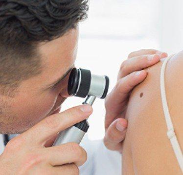 Examinare aluniță cu dermatoscopul