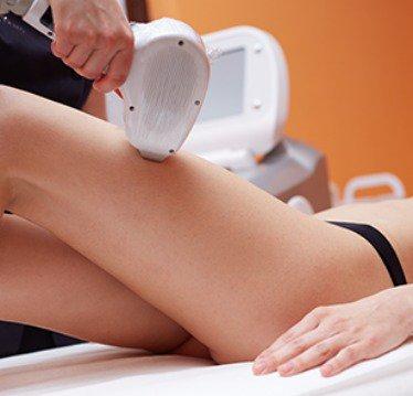 Epilare definitivă picioare cu laser (IPL)