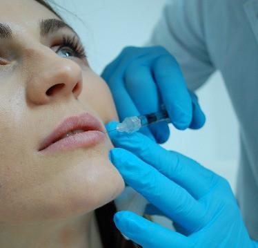 Medic dermatolog injectând acid hialuronic în buze