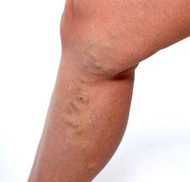 Scleroterapia: ce se întâmplă? Avantajele și dezavantajele procedurii