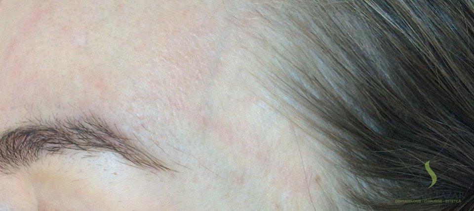 Aspect frunte și tâmplă după excizia nevilor