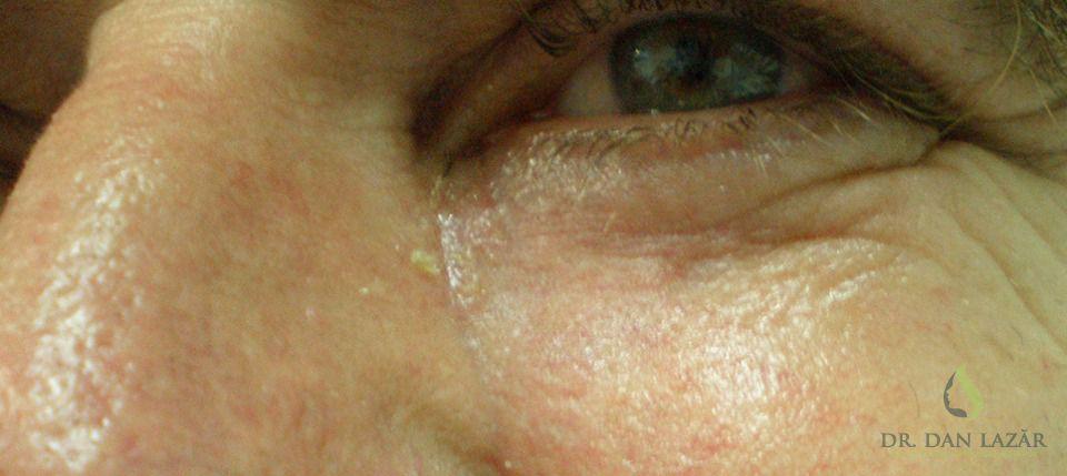 Cicatrice carcinom bazocelular chistic operat