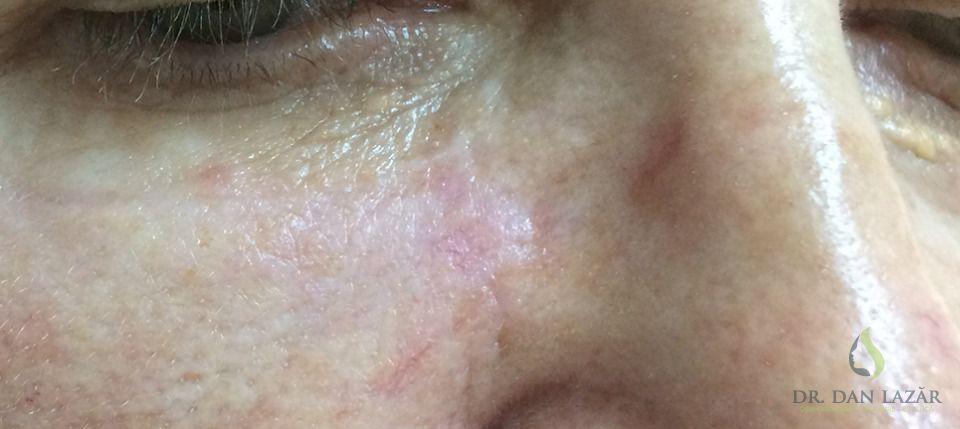 Carcinom bazocelular nodular ulcerat operat