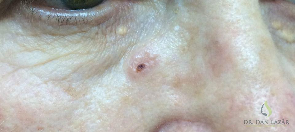 Carcinom bazocelular nodular ulcerat pe vârful nasului