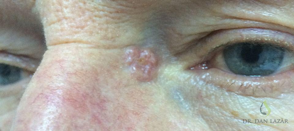 Carcinom bazocelular nodular la baza nasului