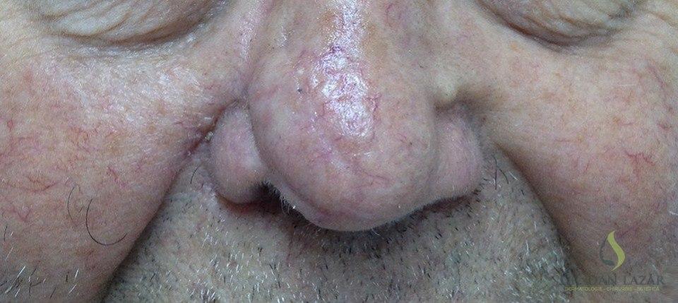 Carcinom bazocelular operat