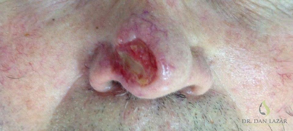 Carcinom bazocelular ulcerat piramidă nazală