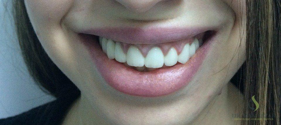 Zâmbet asimetric, gingie expusă (Gummy smile)