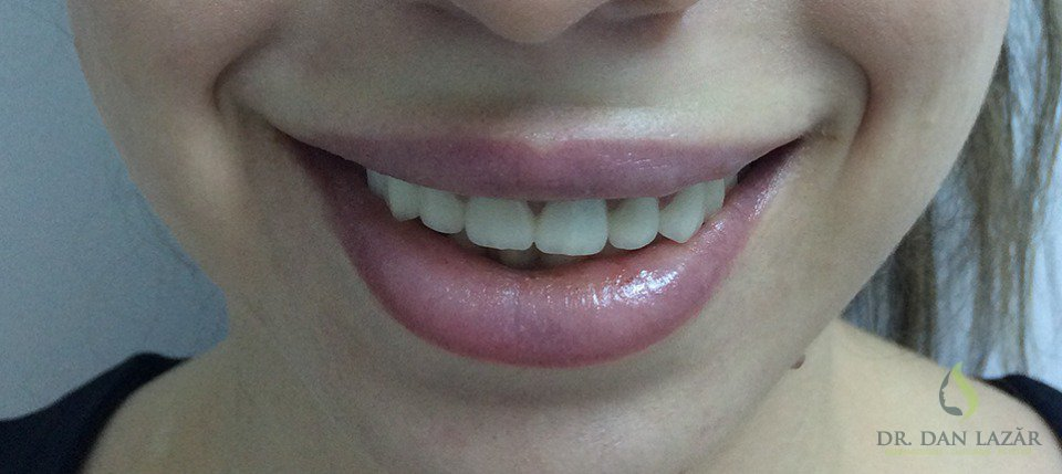 Gummy smile corectat cu botox