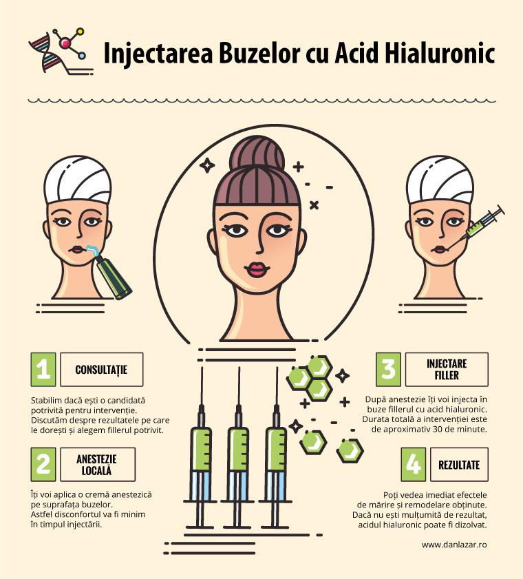 Injectarea buzelor cu acid hialuronic (schematic)